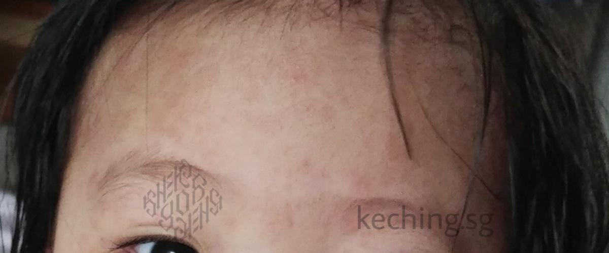 what does dengue rash look like